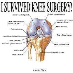 knee_surgery_gift_3_postcards_package_of_8.jpg?height=250&width=250 ...