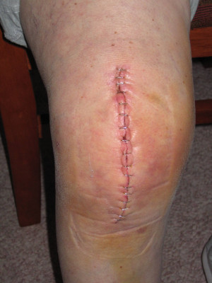 After Total Knee Replacement Surgery