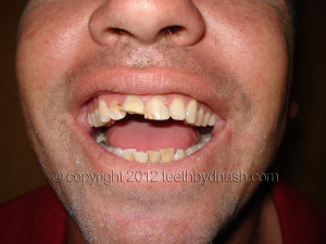 These are some of How Repair Broken Fractured Cracked Tooth pictures