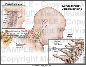 Facet Injections in Neck