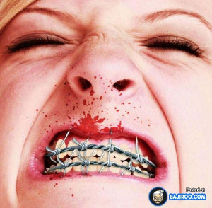 27 Pictures Of People With Funny Teeth Braces