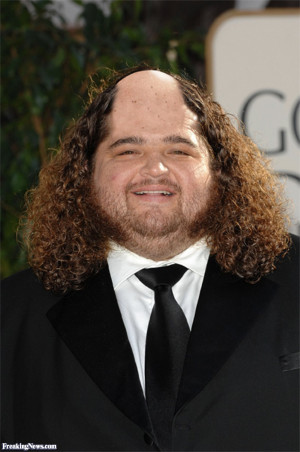 Balding Hurley from Lost