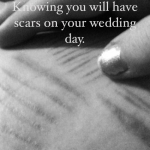 self harm #scars #self harm scars #wedding #wedding day