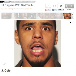 Cole told Fuse how people started mentioning his bad teeth after he ...