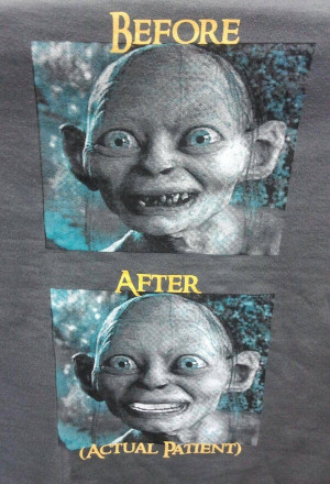 Gollum, before and after. You know what the after picrure reminded me ...