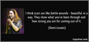 think scars are like battle wounds - beautiful, in a way. They show ...
