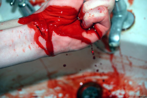 Slitted Wrists