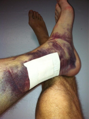 17 Gross Photos That Prove Sports Injuries Are Worse Than They Sound