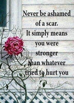 Never be ashamed of a scar. It simply means you were stronger than ...