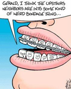 Braces humor! More