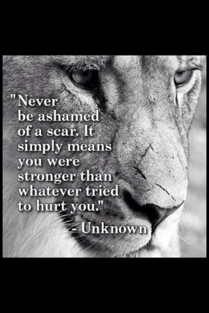 Never be ashamed of a scar! It simply means you were stronger than ...
