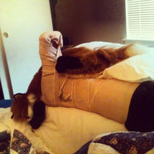 Related Pictures funny broken ankle