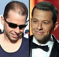 Jon Cryer Before And After...