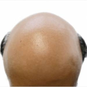 Top Quotes, Words of Wisdom and Witticisms on Baldness Anything