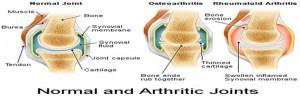 rheumatoid arthritis is a form of inflammatory arthritis and an ...
