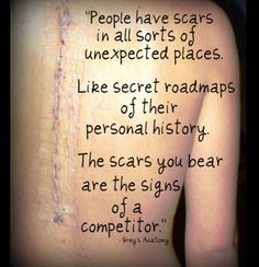 This seriously means so much to me. A Grey's Anatomy quote and a scar ...