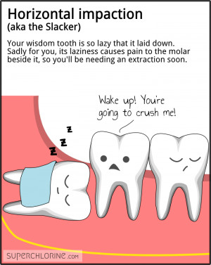 Horizontal impaction (aka the Slacker). Your wisdom tooth is so lazy ...