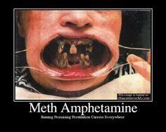 Celebrities Doing Methamphetamine | Anti Meth Campaign More