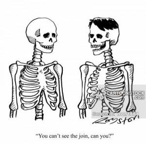 ... skeleton-bone-bald-male_pattern_baldness-bald_patches-rron1661_low.jpg