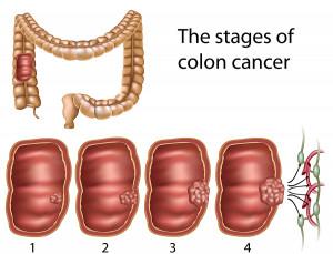 bigstock_Colon_cancer_18025796