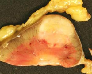 angiomyolipoma radiology