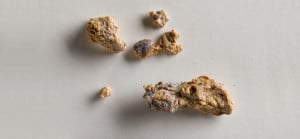 Here's What Causes Kidney Stones... Plus Prevention and Remedies