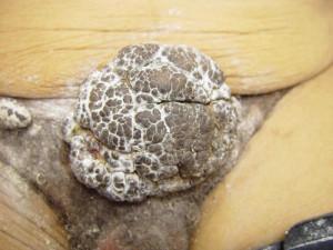 Thread: Genital Warts