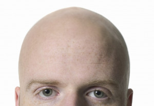 Bald Is Beautiful Quotes