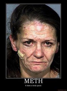 meth heads more photos meth addict toll meth kill horrible drugs ...