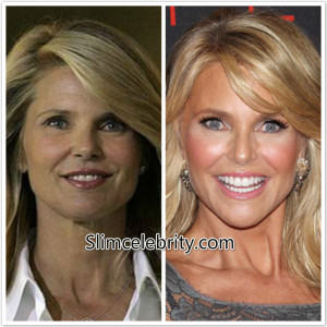 Christie Brinkley Plastic Surgery Before and After