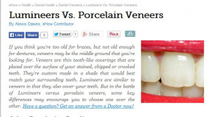 lumineers porcelain veneers that do not require