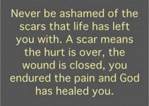 God heals!